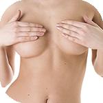 Фото до и после увеличения груди круглыми имплантами