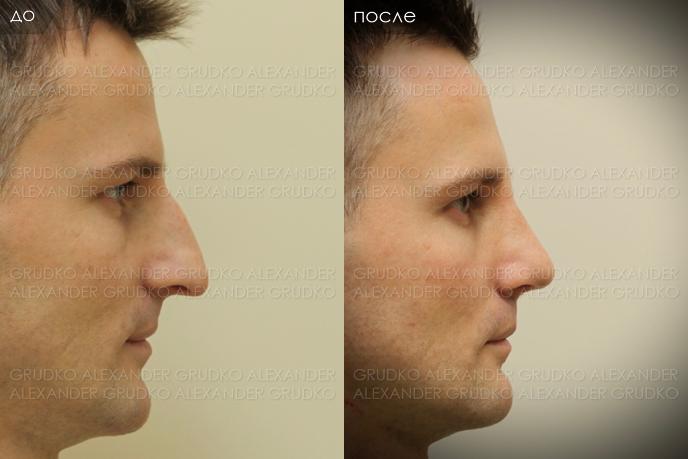 крепким телосложением, денис гусев фото до и после ринопластики какой-то спец